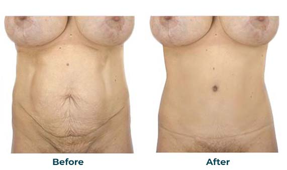 Tummy Tuck and Abdominoplasty Surgery in Orange County and Newport Beach - CosmetiCare