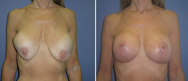 Breast Reconstruction Case #31108