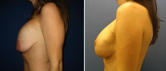 Breast Reconstruction Case #940801