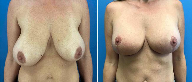 Breast Reduction Case #1001678