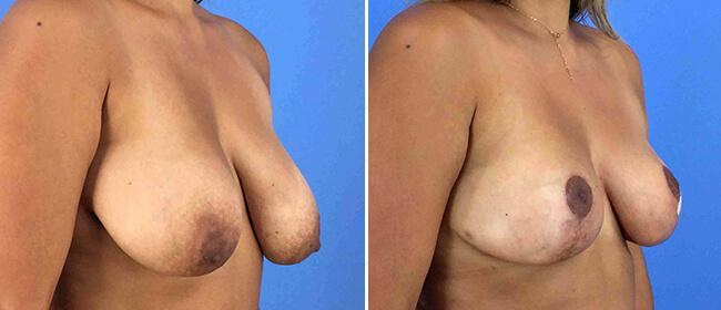 Breast Reduction Case #1007197