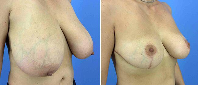Breast Reduction Case #1013917