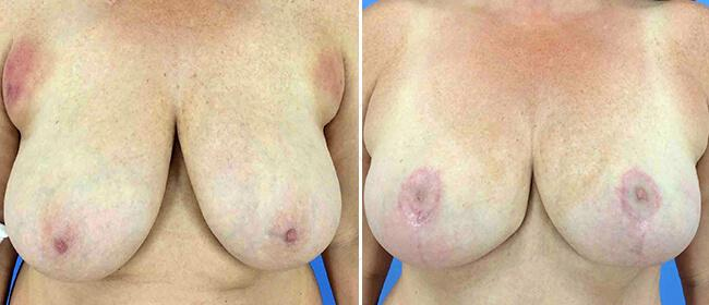 Breast Reduction Case #1018933