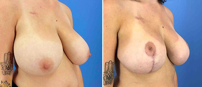 Breast Reduction Case #1023658