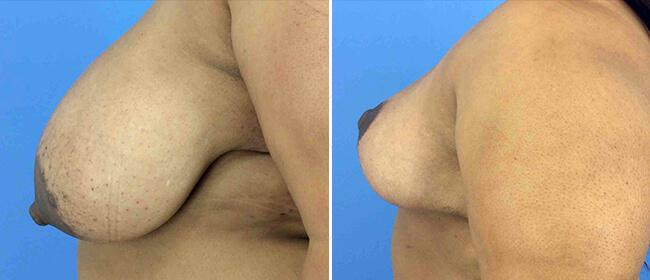 Breast Reduction Case #1023816