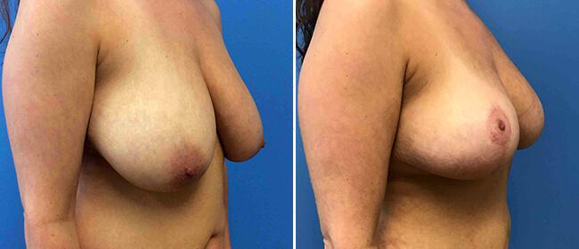 Breast Reduction Case #1029038