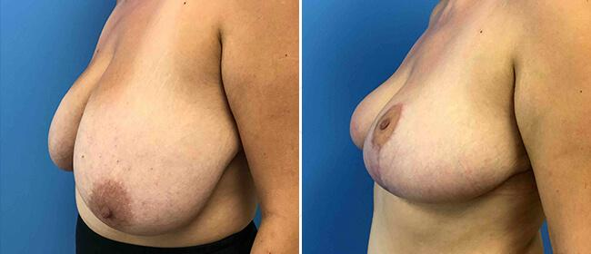 Breast Reduction Case #1029750
