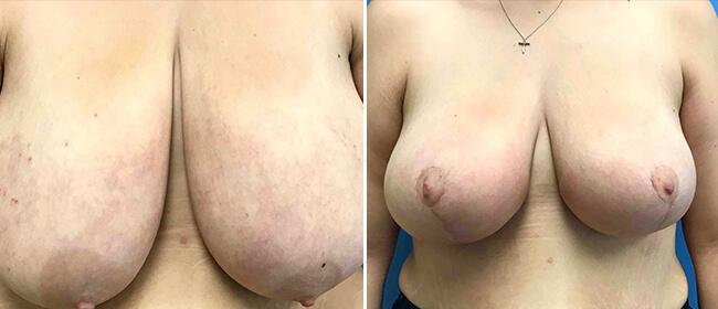 Breast Reduction Case #1029998