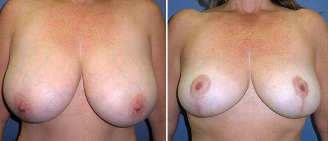 Breast Reduction Case #30413