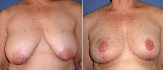 Breast Reduction Case #31777
