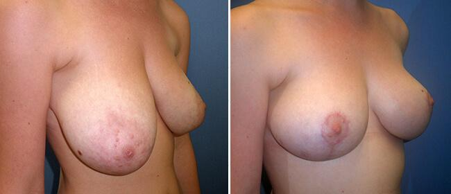 Breast Reduction Case #33532