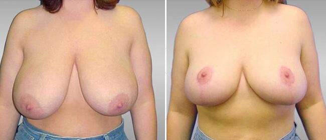 Breast Reduction Case #340075