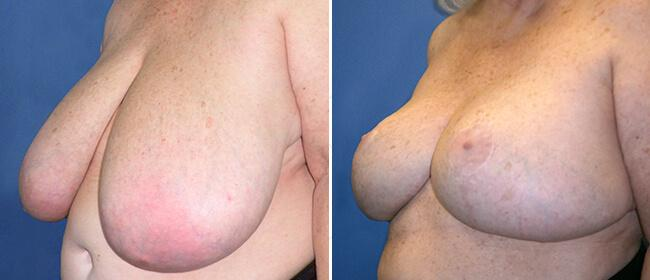 Breast Reduction Case #34248