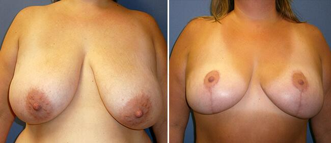 Breast Reduction Case #48626
