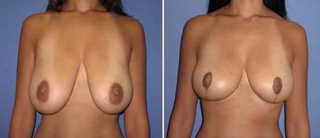 Breast Reduction Case #892004