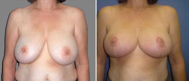 Breast Reduction Case #894007