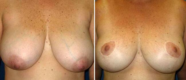 Breast Reduction Case #986001