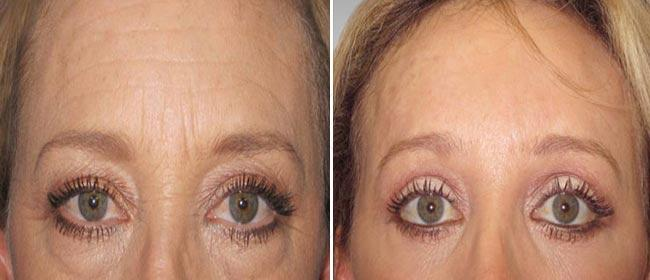 Brow and Forehead Lift Case #001