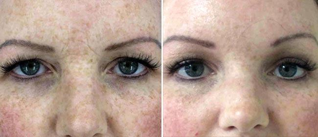 Brow and Forehead Lift Case #1017697
