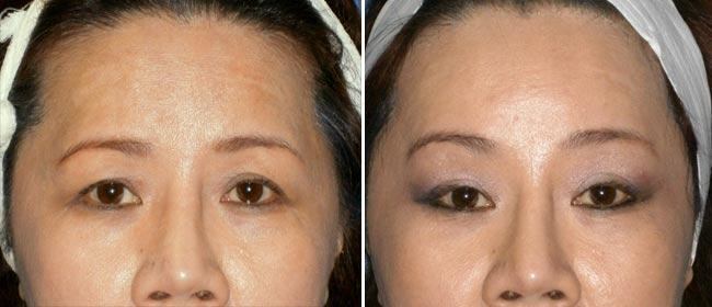 Brow and Forehead Lift Case #18854