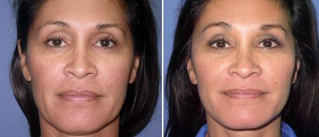 Brow and Forehead Lift Case #19455