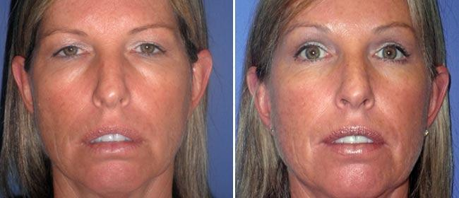 Brow and Forehead Lift Case #26785