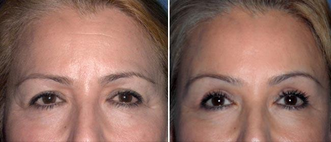 Brow and Forehead Lift Case #28587