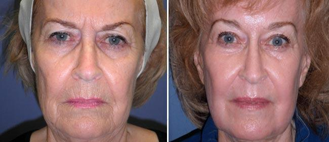 Brow and Forehead Lift Case #32631