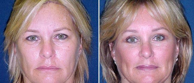 Brow and Forehead Lift Case #3766