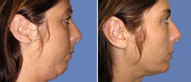 Chin and Cheek Implant Case #001
