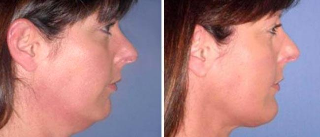 Chin and Cheek Implant Case #002