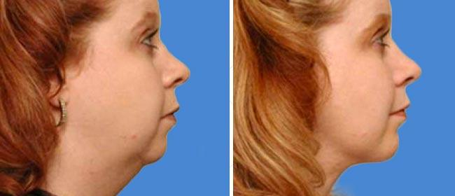 Chin and Cheek Implant Case #003
