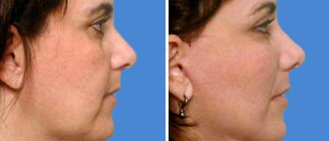 Chin and Cheek Implant Case #004