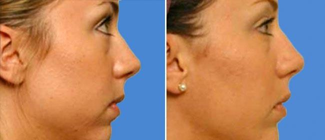 Chin and Cheek Implant Case #005