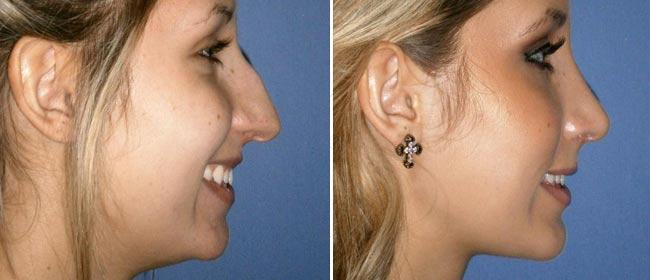 Chin and Cheek Implant Case #1000010