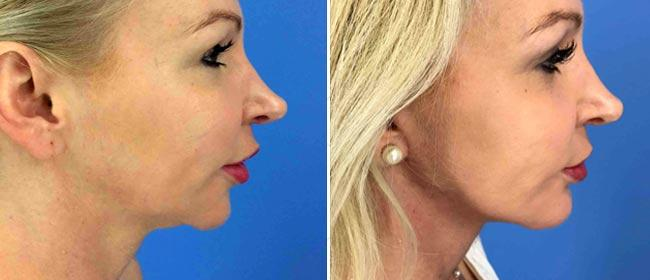 Chin and Cheek Implant Case #1022705