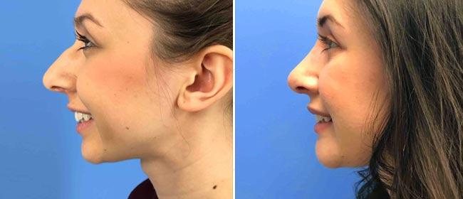 Chin and Cheek Implant Case #1026907