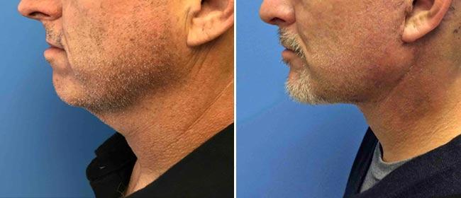 Chin and Cheek Implant Case #1033802