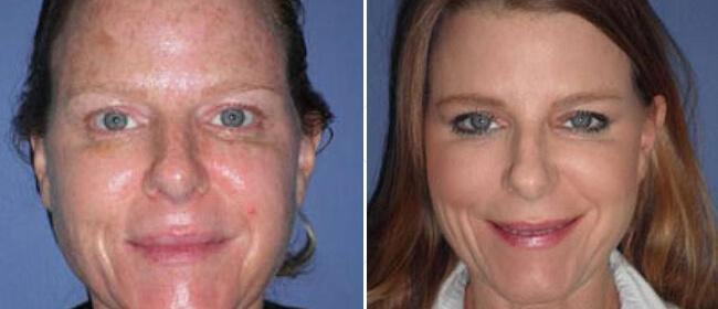 Lunch Hour Facelift Case #892671