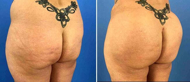 Before and After - Brazilian Butt Lift Case #1028217