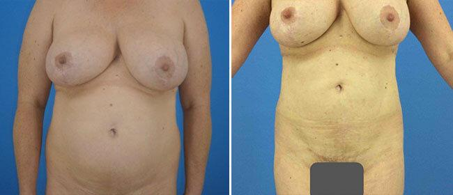 Liposuction and Flanks Case #9456