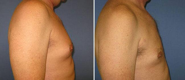 Male Breast Reduction Case #905031