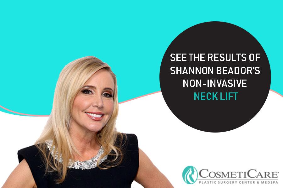 See the Results of Shannon Beador's Non-Invasive Neck Lift