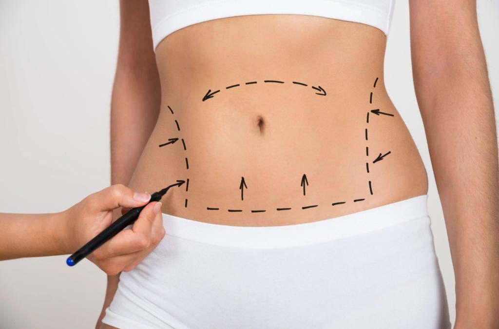 Drainless Tummy Tuck Vs. Tummy Tuck With Drains