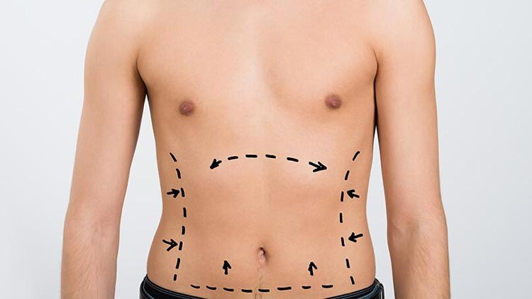 Liposuction: The Differences Between Men and Women
