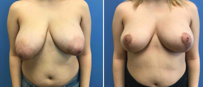 Breast Reduction #141627