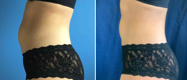 CoolSculpting #0010