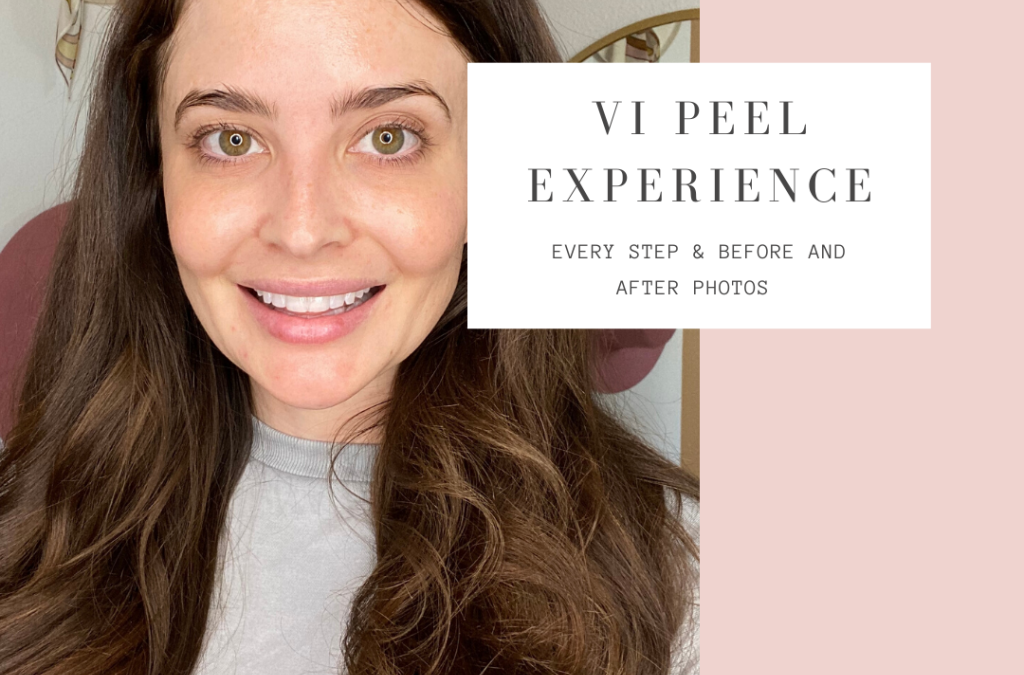 VI Peel Experience with Before and After Photos