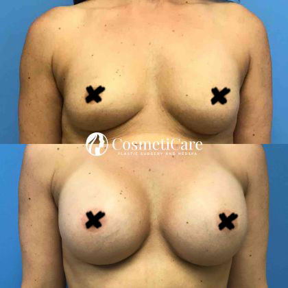 Orange-County-Breast-Augmentation-Before-After-Surgery-IMG-1