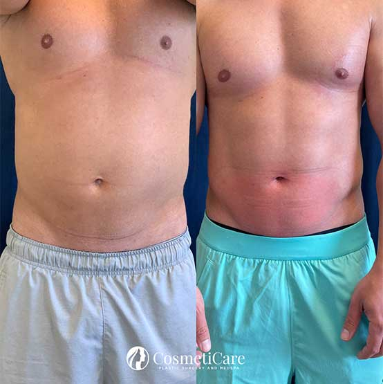 CoolSculpting-Before-and-After-Abs